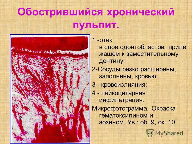 Обострившийся хронический пульпит. 1 -отек в слое одонтобластов, приле жашем к заместительному дентину; 2-Сосуды резко расширены, заполнены, кровью; 3 - кровоизлияния; 4 - лейкоцитарная инфильтрация. Микрофотограмма. Окраска гематомсилином и эозином