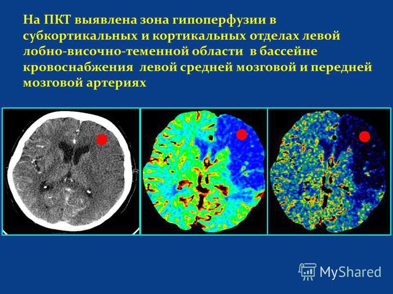 На ПКТ выявлена зона гипоперфузии в субкортикальных и кортикальных отделах левой лобно-височно-теменной области в бассейне кровоснабжения левой средней мозговой и передней мозговой артериях