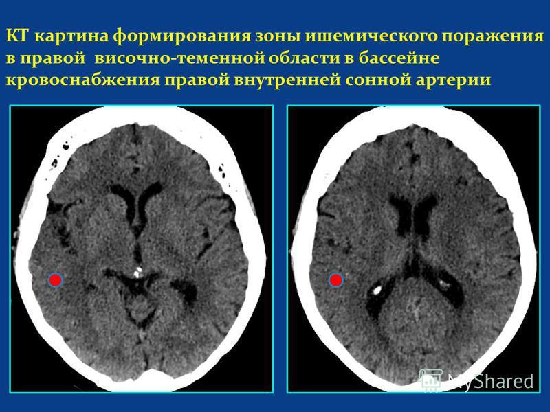 КТ картина формирования зоны ишемического поражения в правой височно-теменной области в бассейне кровоснабжения правой внутренней сонной артерии