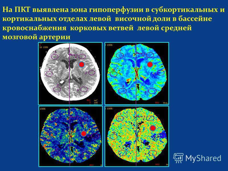 На ПКТ выявлена зона гипоперфузии в субкортикальных и кортикальных отделах левой височной доли в бассейне кровоснабжения корковых ветвей левой средней мозговой артерии