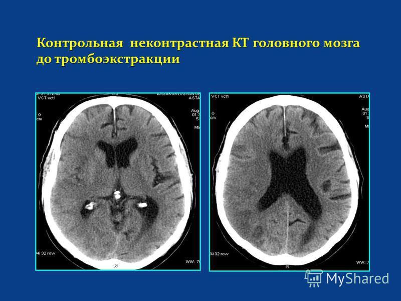 Контрольная неконтрастная КТ головного мозга до тромбоэкстракции