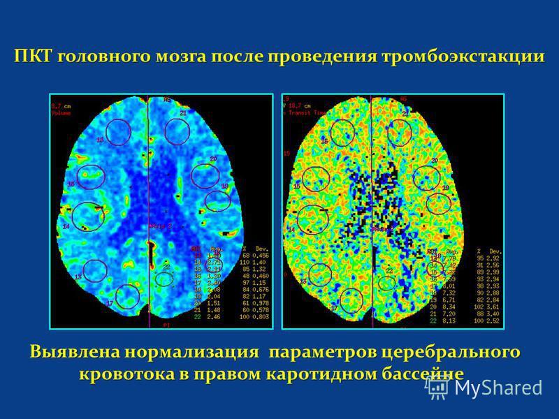 ПКТ головного мозга после проведения тромбоэкстакции ПКТ головного мозга после проведения тромбоэкстакции Выявлена нормализация параметров церебрального кровотока в правом каротидном бассейне Выявлена нормализация параметров церебрального кровотока в