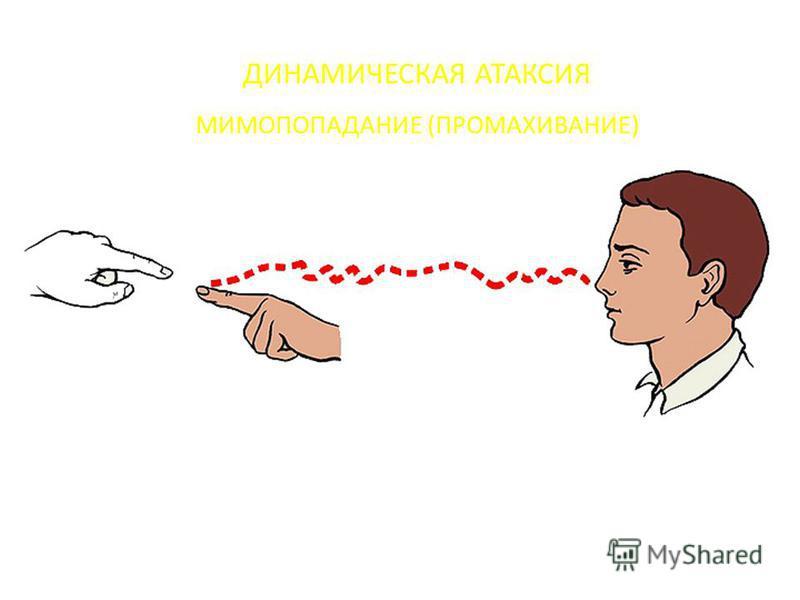 ДИНАМИЧЕСКАЯ АТАКСИЯ МИМОПОПАДАНИЕ (ПРОМАХИВАНИЕ)
