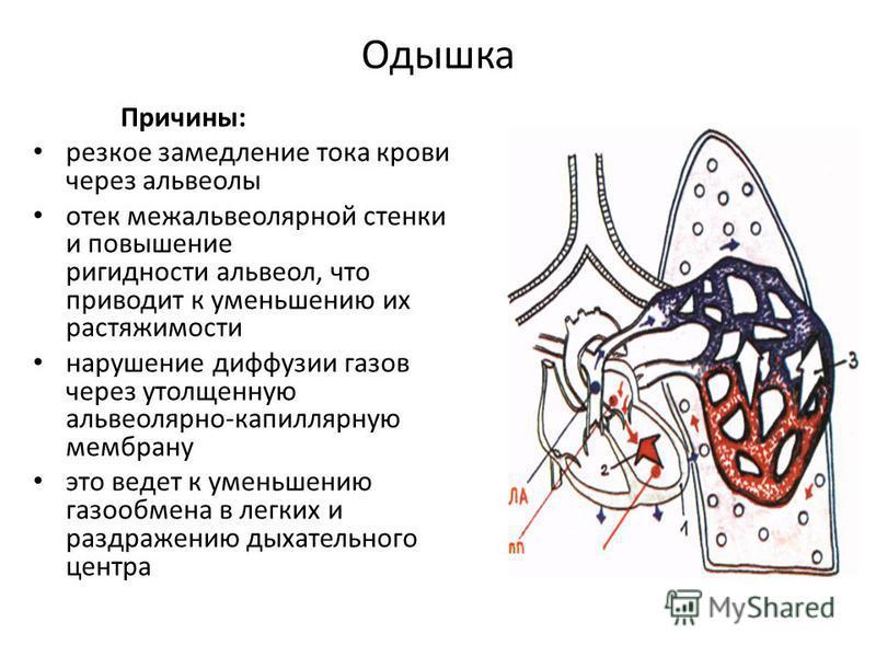 Одышка Причина: резкое замедление тока крови через альвеолы отек межальвеолярной стенки и повышение ригидности альвеол, что приводит к уменьшению их растяжимости нарушение диффузии газов через утолщенную альвеолярно-капиллярную мембрану это ведет к у