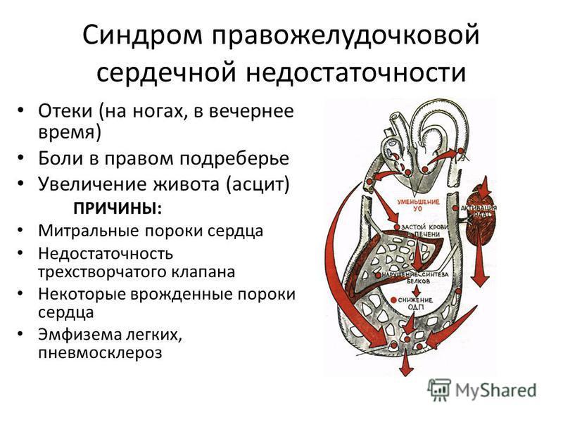 Синдром правожелудочковой сердечной недостаточности Отеки (на ногах, в вечернее время) Боли в правом подреберье Увеличение живота (асцит) ПРИЧИНЫ: Митральнае пороки сердца Недостаточность трехстворчатого клапана Некоторые врожденнае пороки сердца Эмф