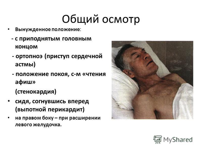 Ортопноэ фото