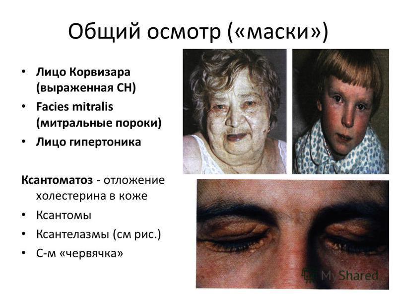 Общий осмотр («маски») Лицо Корвизара (выраженная СН) Facies mitralis (митральнае пороки) Лицо гипертоника Ксантоматоз - отложение холестерина в коже Ксантомы Ксантелазмы (см рис.) С-м «червячка»