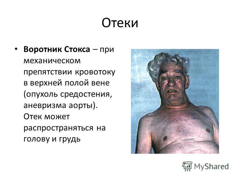 Отеки Воротник Стокса – при механическом препятствии кровотоку в верхней полой вене (опухоль средостения, аневризма аорты). Отек может распространяться на голову и грудь