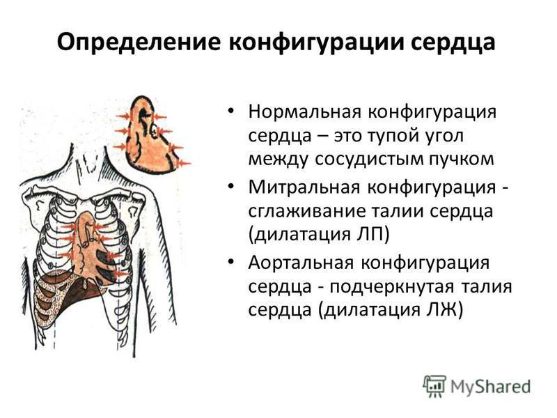 Определение конфигурации сердца Нормальная конфигурация сердца – это тупой угол между сосудистым пучком Митральная конфигурация - сглаживание талии сердца (дилатация ЛП) Аортальная конфигурация сердца - подчеркнутая талия сердца (дилатация ЛЖ)
