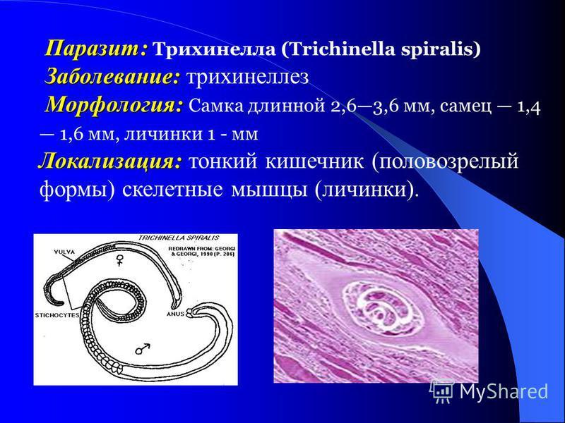 Паразит: Паразит: Трихинелла (Trichinella spiralis) Заболевание: Заболевание: трихинелллез Морфология: Морфология: Самка длинной 2,63,6 мм, самец 1,4 1,6 мм, личинки 1 - мм Локализация: Локализация: тонкий кишечник (половозрелый формы) скелетные мышц