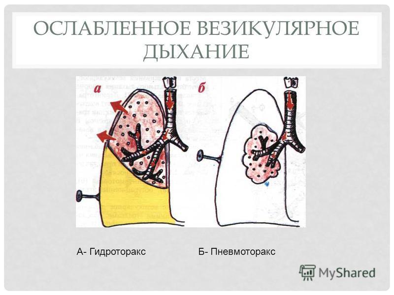 ОСЛАБЛЕННОЕ ВЕЗИКУЛЯРНОЕ ДЫХАНИЕ А- Гидроторакс Б- Пневмоторакс