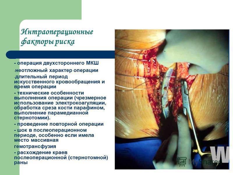 Интраоперационные факторы риска - операция двухстороннего МКШ - неотложный характер операции - длительный период искусственного кровообращения и время операции - технические особенности выполнения операции (чрезмерное использование электрокоагуляции,