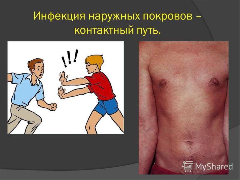 Инфекция наружных покровов – контактный путь.