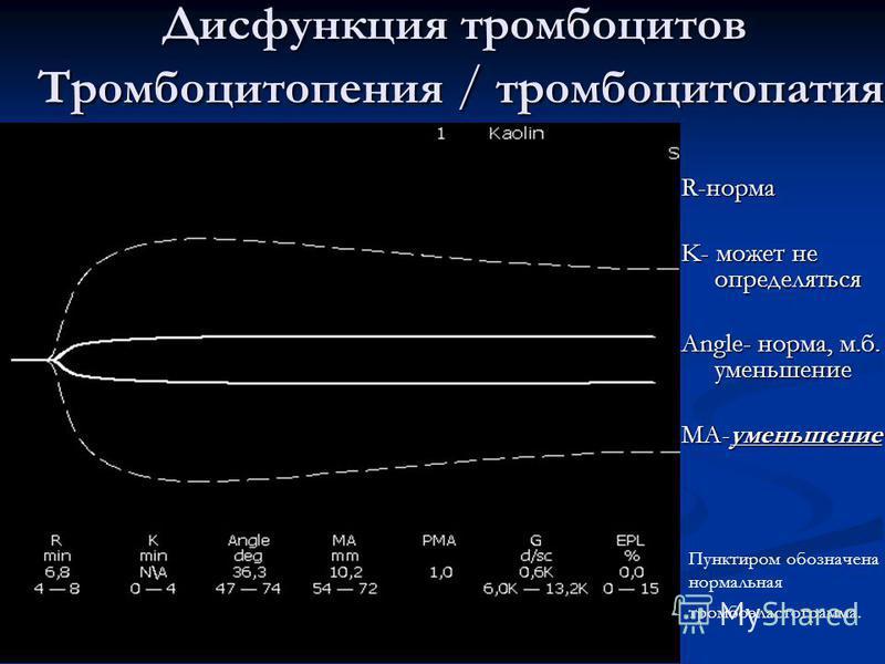 Дисфункция тромбоцитов Тромбоцитопения / тромбоцитопатия R-норма K- может не определяться Angle- норма, м.б. уменьшение МА-уменьшение Пунктиром обозначена нормальная тромбоэластограмма.