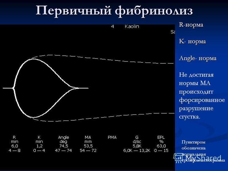 Первичный фибринолиз R-норма K- норма Angle- норма Не достигая нормы МА происходит форсированное разрушение сгустка. Пунктиром обозначена нормальная тромбоэластограмма
