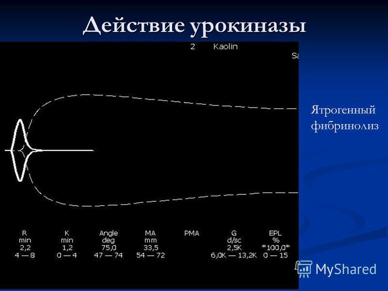 Действие урокиназы Ятрогенный фибринолиз