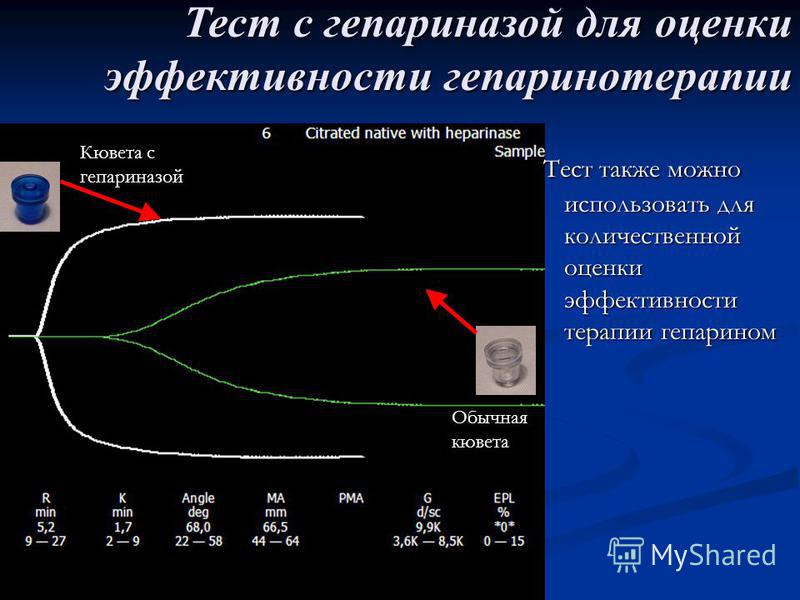 Тест также можно использовать для количественной оценки эффективности терапии гепарином Тест с гепариназой для оценки эффективности гепаринотерапии Кювета с гепариназой Обычная кювета