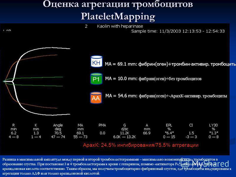 P1 AA KH MA = 69.1 mm: фибрин(оген)+тромбин-активир. тромбоциты MA = 10.0 mm: фибрин(оген)+без тромбоцитов MA = 54.6 mm: фибрин(оген)+-АрахК-активир. тромбоциты Оценка агрегации тромбоцитов PlateletMapping АрахК: 24.5% ингибирования/75.5% агрегации Р