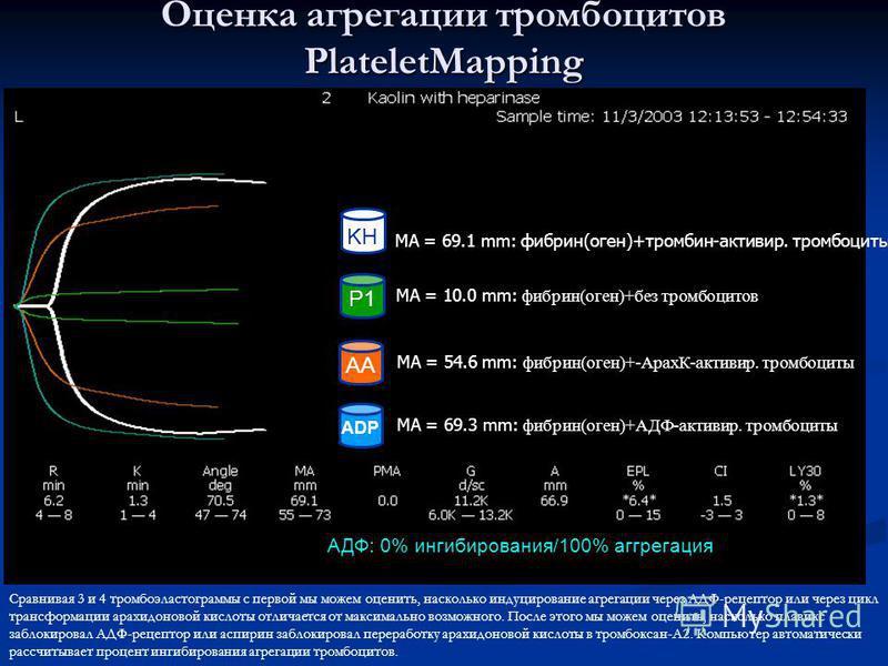 P1 ADP AA KH MA = 69.1 mm: фибрин(оген)+тромбин-активир. тромбоциты MA = 10.0 mm: фибрин(оген)+без тромбоцитов MA = 69.3 mm: фибрин(оген)+АДФ-активир. тромбоциты MA = 54.6 mm: фибрин(оген)+-АрахК-активир. тромбоциты АДФ: 0% ингибирования/100% агрегац