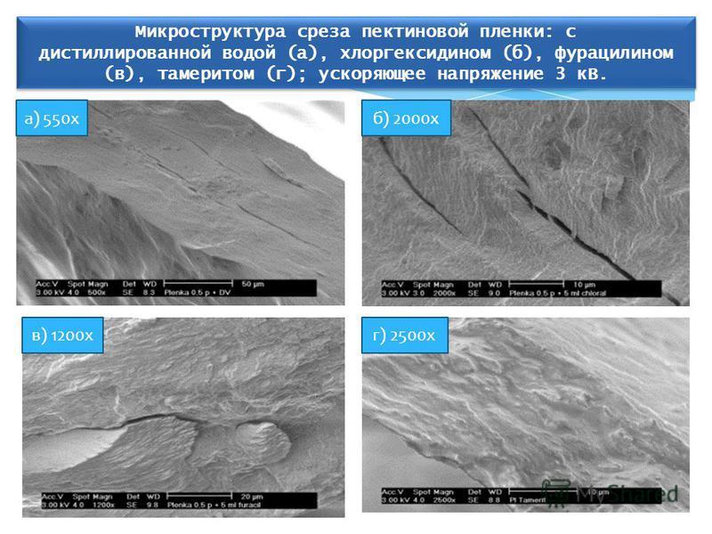 а) 550 хб) 2000 х в) 1200 кг) 2500 х Микроструктура среза пектиновой пленки: с дистиллированной водой (а), хлоргексидином (б), фурацилином (в), тамеритом (г); ускоряющее напряжение 3 кВ. Микроструктура среза пектиновой пленки: с дистиллированной водо