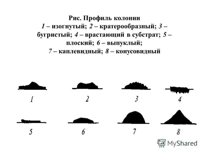Рис. Профиль колонии 1 – изогнутый; 2 – кратерообразный; 3 – бугристый; 4 – врастающий в субстрат; 5 – плоский; 6 – выпуклый; 7 – каплевидный; 8 – конусовидный