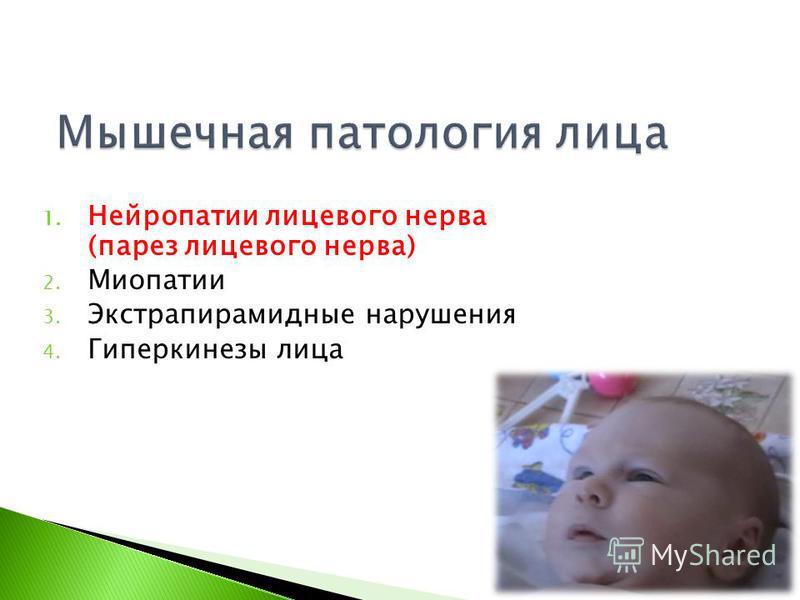 1. Нейропатии лицевого нерва (парез лицевого нерва) 2. Миопатии 3. Экстрапирамидные нарушения 4. Гиперкинезы лица