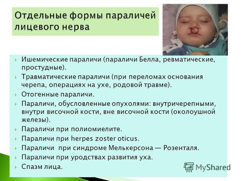 Ишемические параличи (параличи Белла, ревматические, простудные). Травматические параличи (при переломах основания черепа, операциях на ухе, родовой травме). Отогенные параличи. Параличи, обусловленные опухолями: внутричерепными, внутри височной кост
