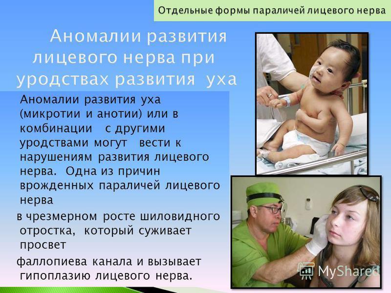 Аномалии развития уха (микротии и анотии) или в комбинации с другими уродствами могут вести к нарушениям развития лицевого нерва. Одна из причин врожденных параличей лицевого нерва в чрезмерном росте шиловидного отростка, который суживает просвет фал