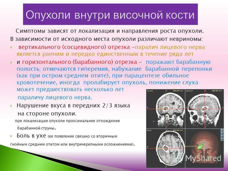 Симптомы зависят от локализация и направления роста опухоли. В зависимости от исходного места опухоли различают невриномы: вертикального (сосцевидного) отрезка -паралич лицевого нерва является ранним и нередко единственным в течение ряда лет и горизо