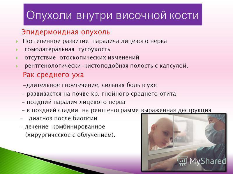 Эпидермоидная опухоль Постепенное развитие паралича лицевого нерва гомолатеральная тугоухость отсутствие отоскопических изменений рентгенологически-кистоподобная полость с капсулой. Рак среднего уха -длительное гноетечение, сильная боль в ухе - разви