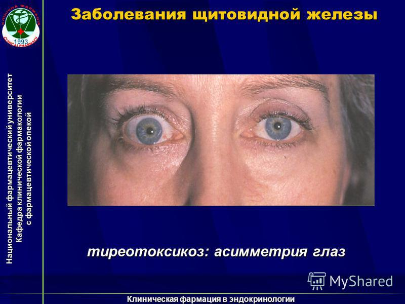 Национальный фармацевтический университет Кафедра клинической фармакологии с фармацевтической опекой Клиническая фармация в эндокринологии Заболевания щитовидной железы тиреотоксикоз: асимметрия глаз