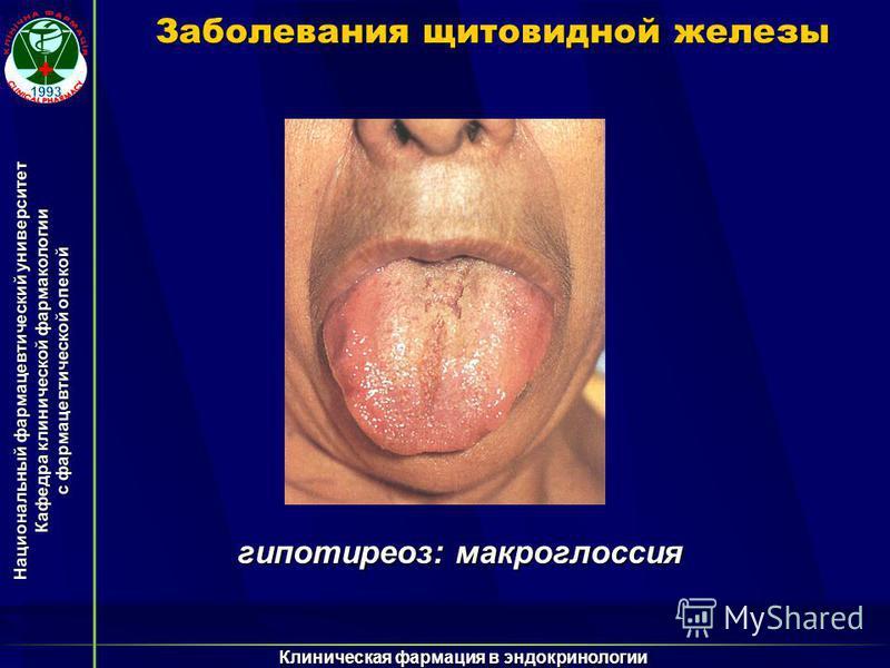 Национальный фармацевтический университет Кафедра клинической фармакологии с фармацевтической опекой Клиническая фармация в эндокринологии Заболевания щитовидной железы гипотиреоз: макроглоссия