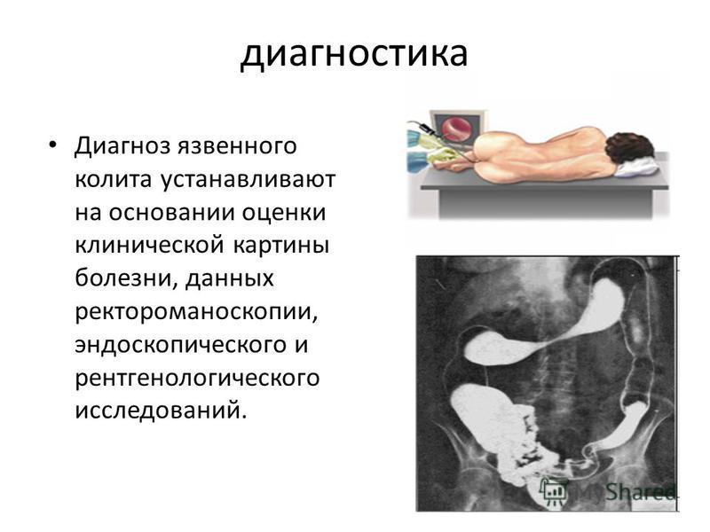 диагностика Диагноз язвенного колита устанавливают на основании оценки клинической картины болезни, данных ректороманоскопии, эндоскопического и рентгенологического исследований.