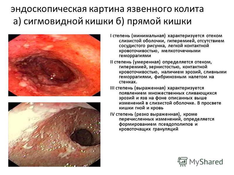 эндоскопическая картина язвенного колита а) сигмовидной кишки б) прямой кишки I степень (минимальная) характеризуется отеком слизистой оболочки, гиперемией, отсутствием сосудистого рисунка, легкой контактной кровоточивостью, мелкоточечными геморрагия
