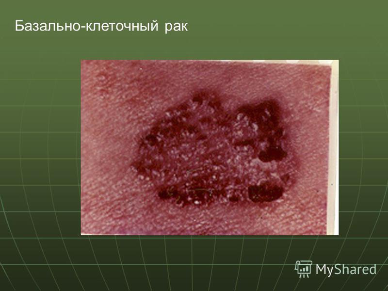 Базально-клеточный рак
