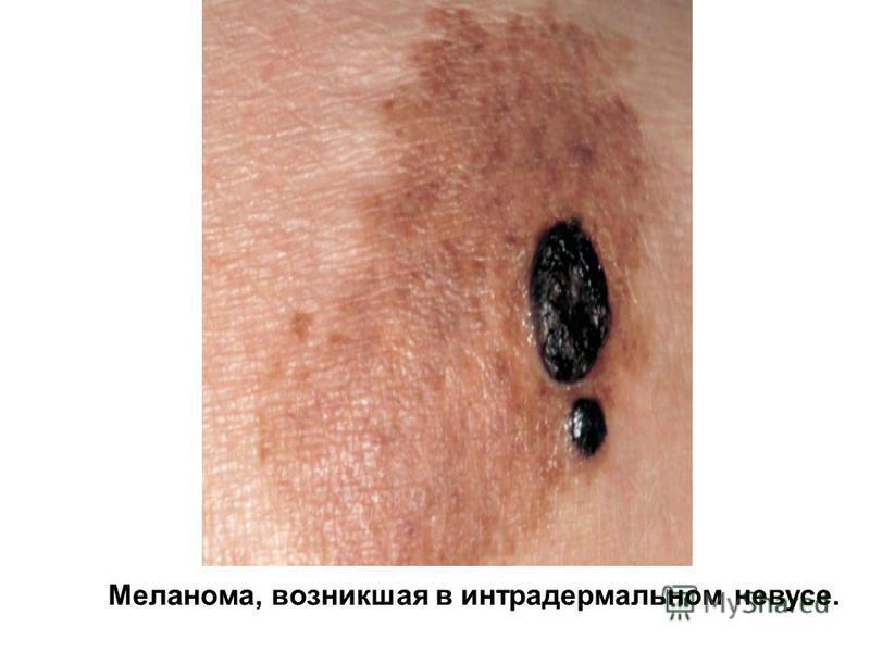 Меланома, возникшая в интрадермальном невусе.
