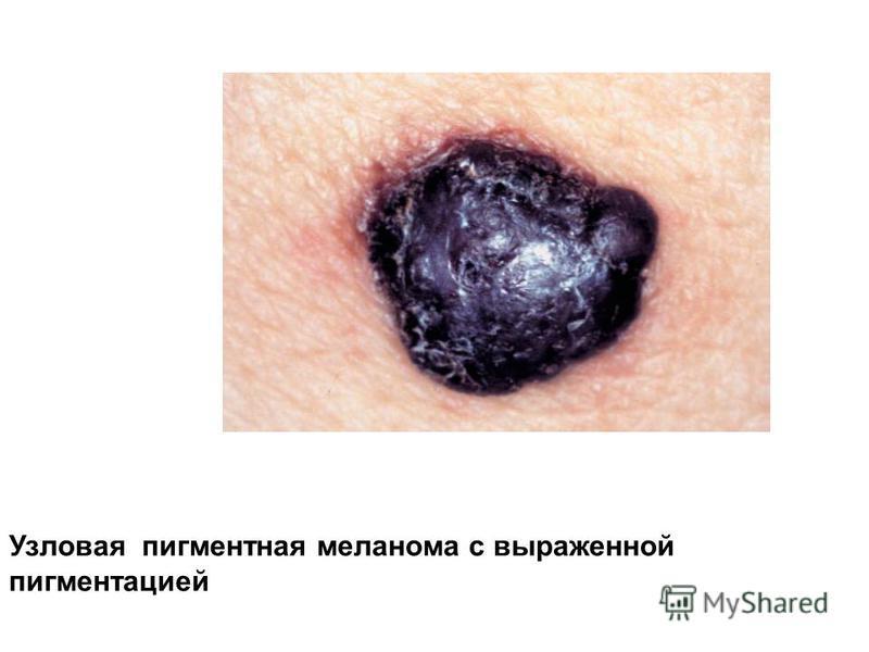 Узловая пигментная меланома с выраженной пигментацией