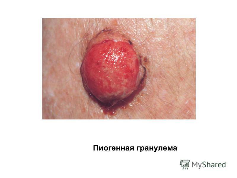 Пиогенная гранулема