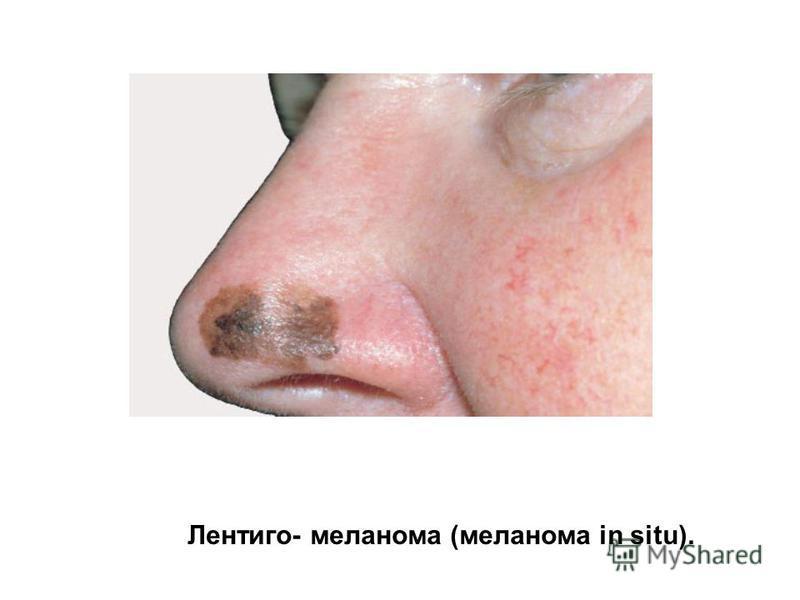 Лентиго- меланома (меланома in situ).