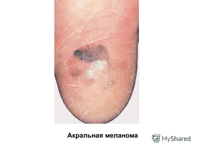 Акральная меланома