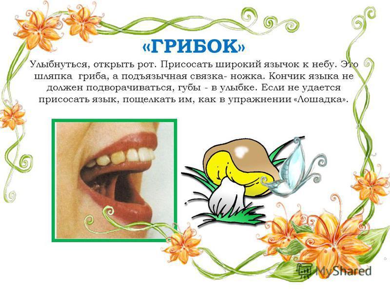 « ГРИБОК» Улыбнуться, открыть рот. Присосать широкий язычок к небу. Это шляпка гриба, а подъязычная связка- ножка. Кончик языка не должен подворачиваться, губы - в улыбке. Если не удается присосать язык, пощелкать им, как в упражнении «Лошадка».