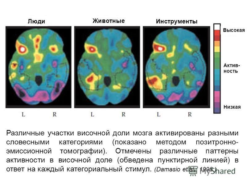 Различные участки височной доли мозга активированы разными словесными категориями (показано методом позитронно- эмиссионной томографии). Отмечены различные паттерны активности в височной доле (обведена пунктирной линией) в ответ на каждый категориаль