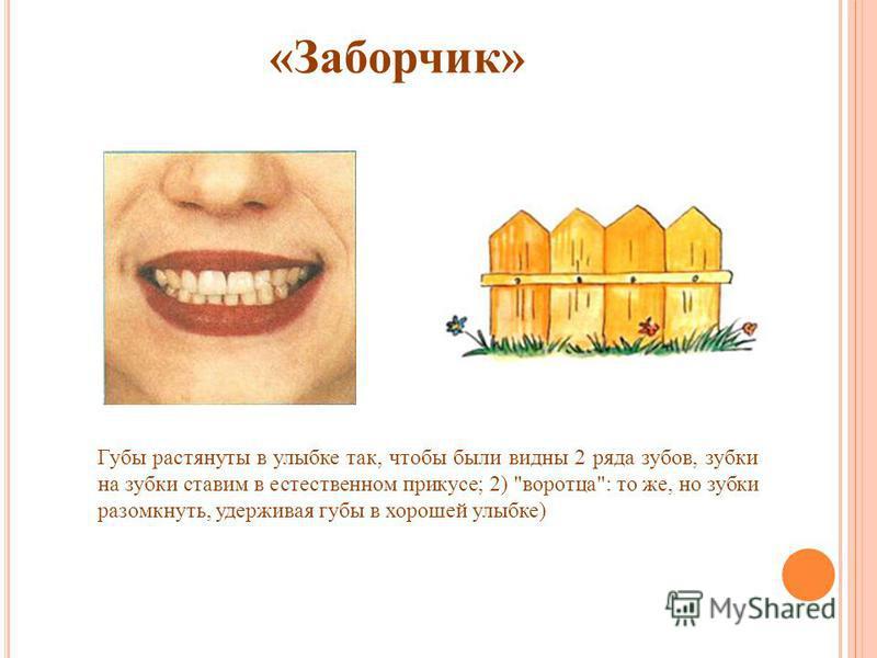 «Заборчик» Губы растянуты в улыбке так, чтобы были видны 2 ряда зубов, зубки на зубки ставим в естественном прикусе; 2) воротца: то же, но зубки разомкнуть, удерживая губы в хорошей улыбке)