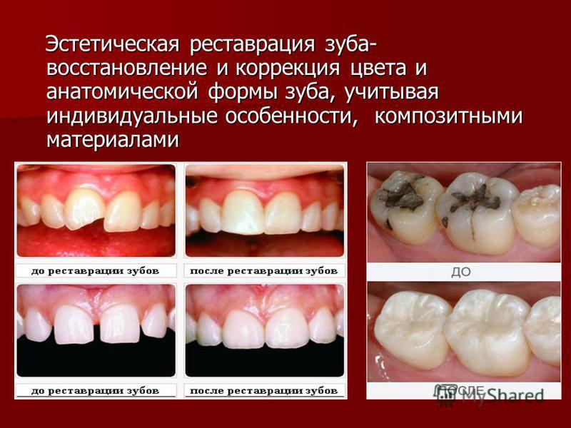 Эстетическая реставрация зуба- восстановление и коррекция цвета и анатомической формы зуба, учитывая индивидуальные особенности, композитными материалами Эстетическая реставрация зуба- восстановление и коррекция цвета и анатомической формы зуба, учит