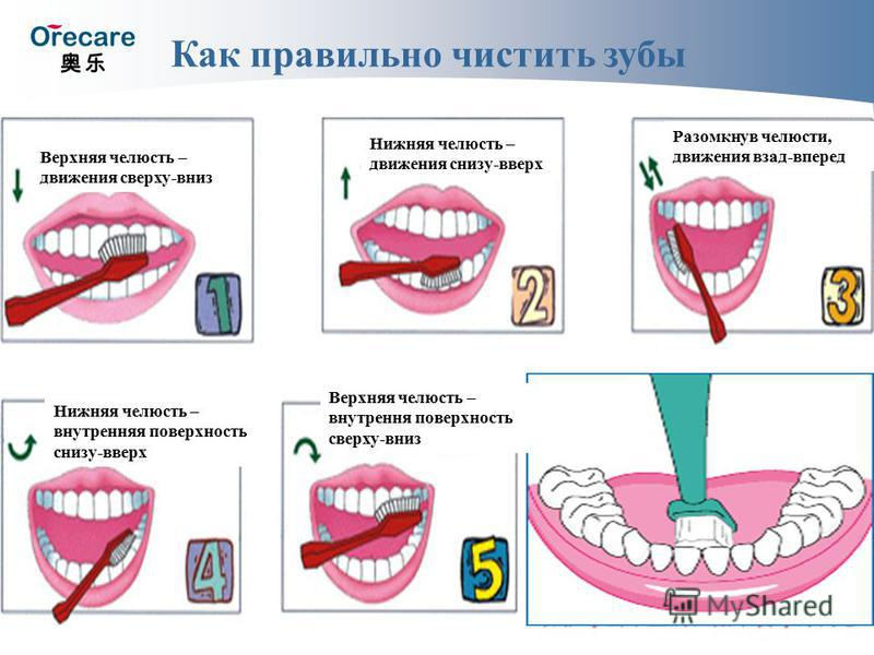 Как правильно чистить зубы Верхняя челюсть – движения сверху-вниз Нижняя челюсть – движения снизу-вверх Разомкнув челюсти, движения взад-вперед Нижняя челюсть – внутренняяя поверхность снизу-вверх Верхняя челюсть – внутренняя поверхность сверху-вниз