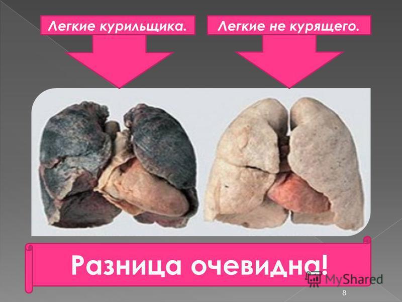 Легкие курильщика.Легкие не курящего. Разница очевидна! 8