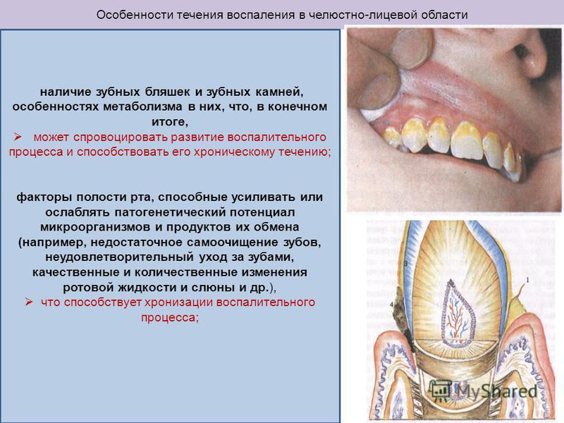 Особенности течения воспаления в челюстно-лицевой области наличие зубных бляшек и зубных камней, особенностях метаболизма в них, что, в конечном итоге, может спровоцировать развитие воспалительного процесса и способствовать его хроническому течению;