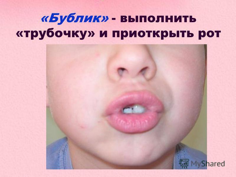 «Бублик» - выполнить «трубочку» и приоткрыть рот