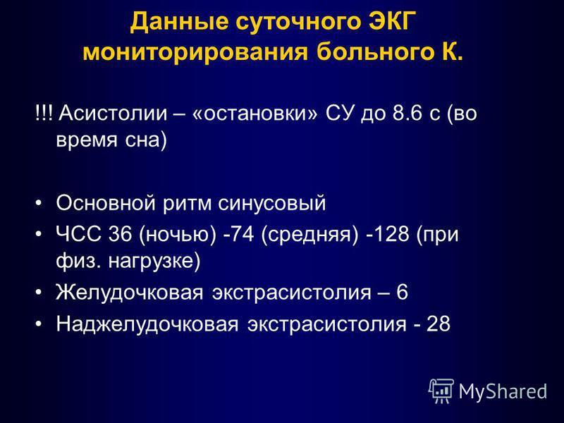 Данные суточного ЭКГ мониторирования больного К. !!! Асистолии – «остановки» СУ до 8.6 с (во время сна) Основной ритм синусовый ЧСС 36 (ночью) -74 (средняя) -128 (при физ. нагрузке) Желудочковая экстрасистолия – 6 Наджелудочковая экстрасистолия - 28