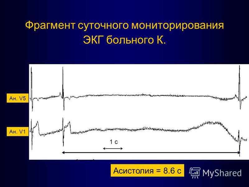 Фрагмент суточного мониторирования ЭКГ больного К. Асистолия = 8.6 с Ан. V5 Ан. V1 1 с